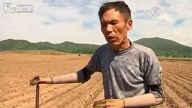 Un fermier chinois se construit ses propres prothèses bioniques