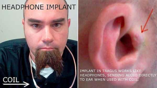 Cyberpunk - Il se greffe des écouteurs directement dans l'oreille