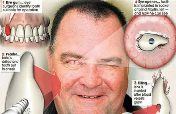 Osteo-Odonto-Kerato-Prosthetsis-surgery-news