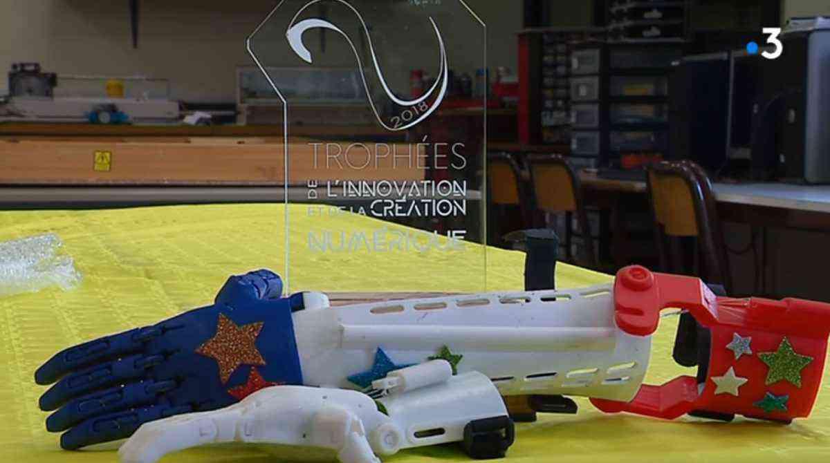 prothèse de bras imprimée en 3D