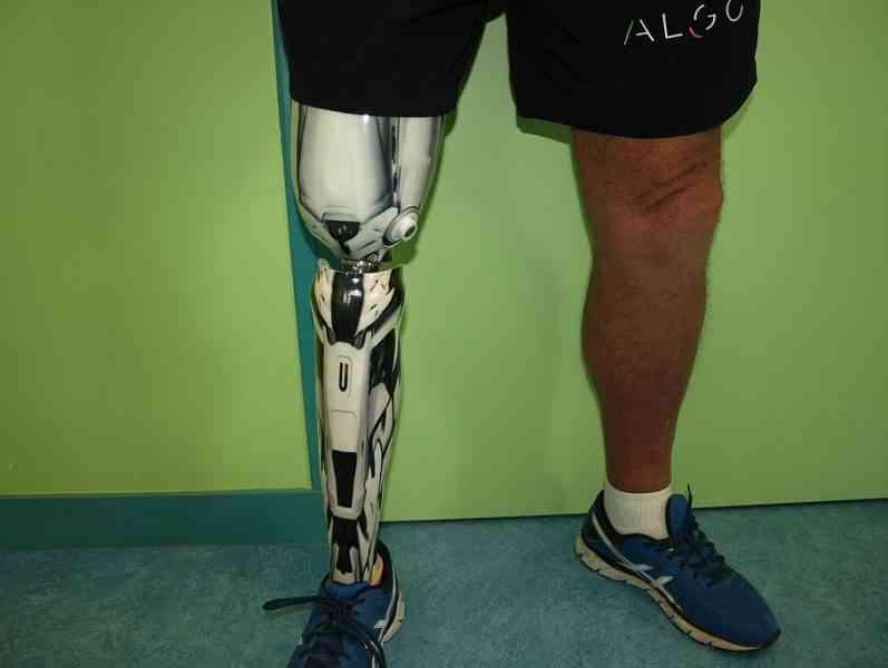 Une entreprise bretonne fabrique des prothèses colorées et personnalisables