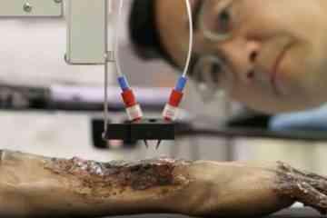 Cette imprimante 3D imprime de la peau directement sur la plaie