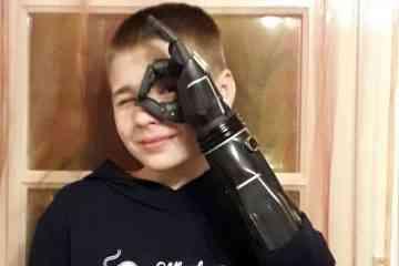 Un jeune garçon du Pas-de-Calais va tester un impressionnant bras bionique réalisé en impression 3D