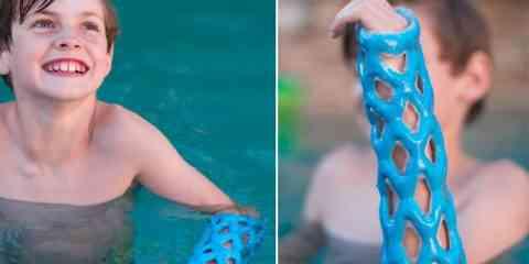 Cast21 réinvente le « plâtre » avec un dispositif respirant et waterproof à base de résine