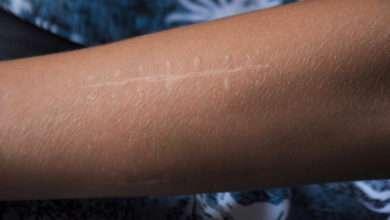 Un médicament anti-cicatrice stimule les cellules productrices de collagène