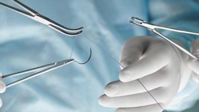 Une lycéenne de 17 ans invente un fil de suture qui change de couleur en cas d'infections